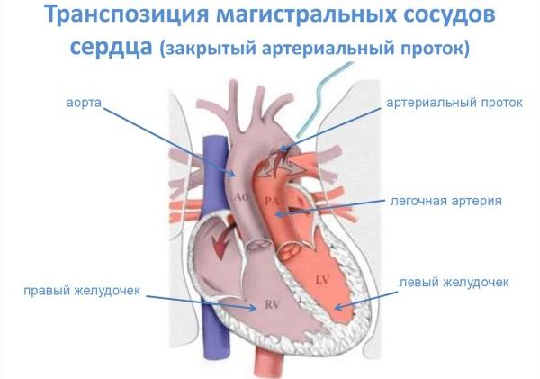 Легочная артерия. Где находится, норма давления, симптомы и лечение тромбоза, стеноза, гипертензия. Клинические рекомендации