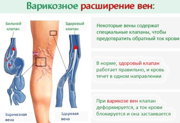 Боль в икроножной мышце на ноге, несколько дней, при ходьбе, беге, после судороги. Причины, что делать