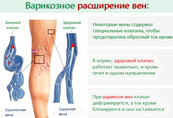 Упражнения от варикоза на ногах на работе, при беременности, от Бубновского, Луценко, Островского
