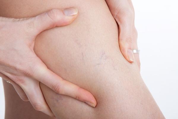 Лопаются капилляры на ногах, появляются синяки, пятна. Что делать, причины и лечение