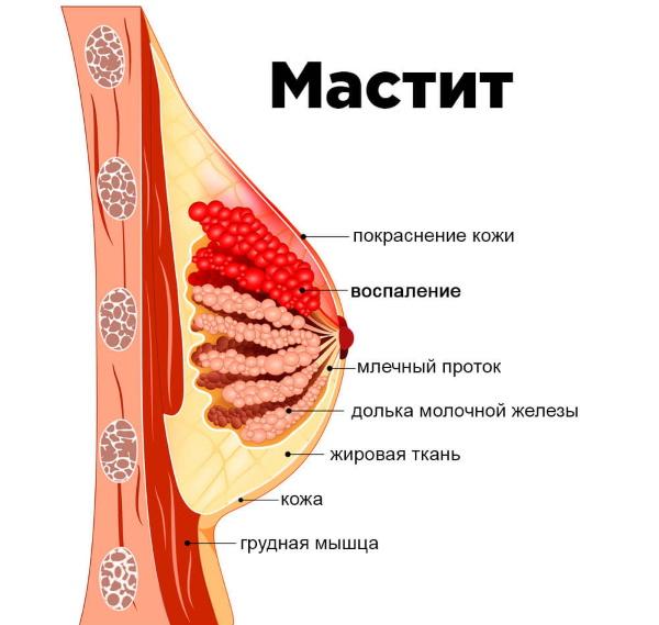 Мастит у женщин. Симптомы и лечение препаратами, народными средствами, антибиотики