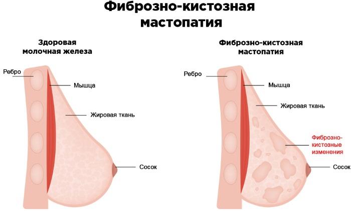 Опухоль в грудине у женщин доброкачественная. Удаление, симптомы, что это может быть