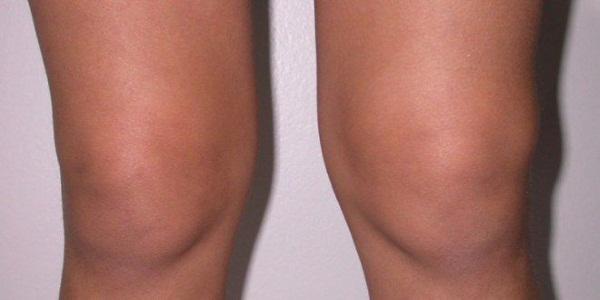 Отек колена. Причины и лечение, народные средства, мази, как снять в домашних условиях