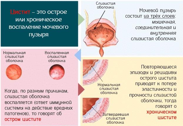 Почки у человека: расположение, где находятся, строение, функции, как работают, болезни