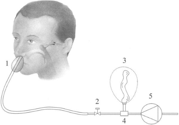 Продувание слуховых труб по Политцеру. Что это такое, как делается, видео