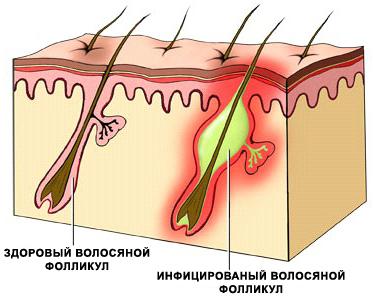 Прыщи на ногах у женщин. Причины и лечение, роль гормонов