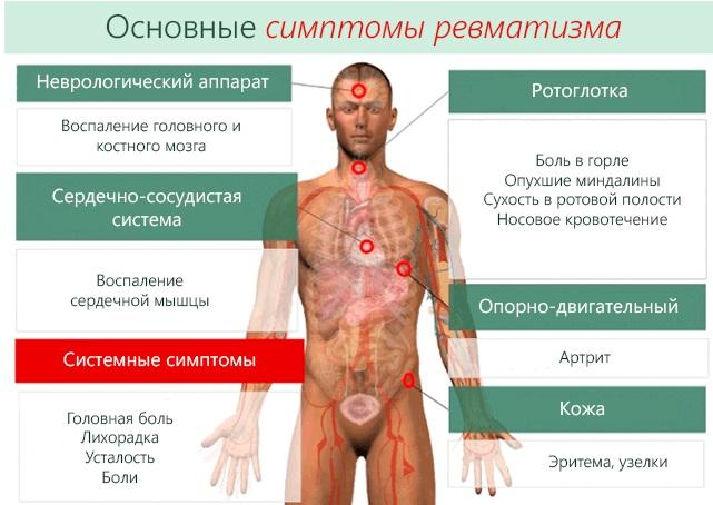 Тромбоцитоз. Причины у взрослых, детей, симптомы, лечение