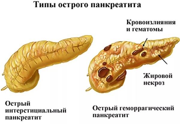 Лечение панкреатита поджелудочной железы народными средствами, травами, семенем льна, медикаментами