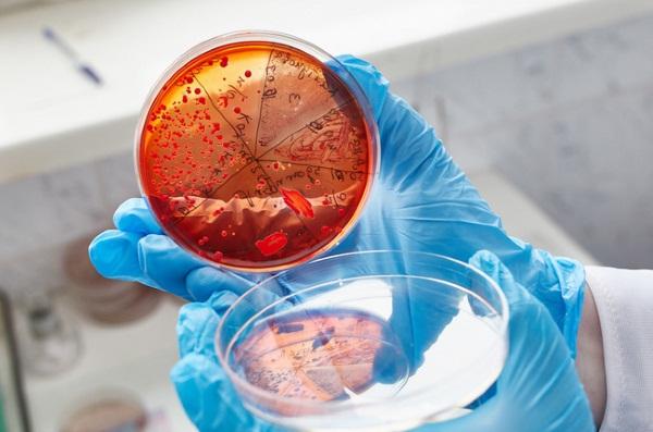 Streptococcus Agalactiae (стрептококк агалактия) в мазке у женщин. Что значит, лечение