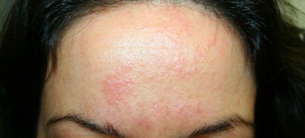 Сыпь на лбу у женщин. Причины, фото, лечение аллергии при беременности
