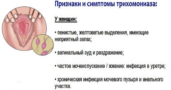 Трихомониаз. Лечение у женщин, курс, препараты, чем опасно