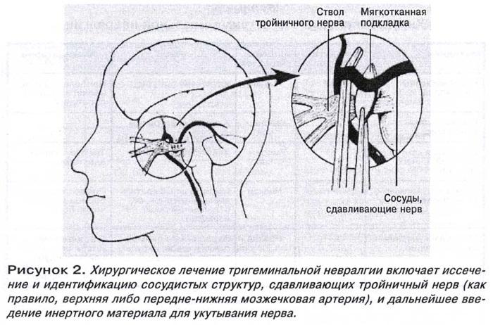 Тройничный нерв. Симптомы воспаления и лечение, медикаментозное, народные средства