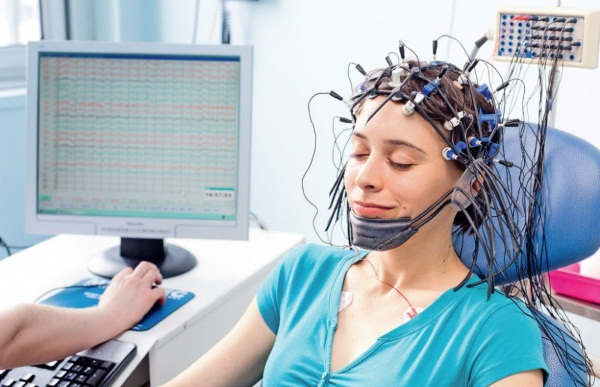 Эпилепсия. Симптомы с потерей и без сознания, стадии, как распознать у взрослого, лечение