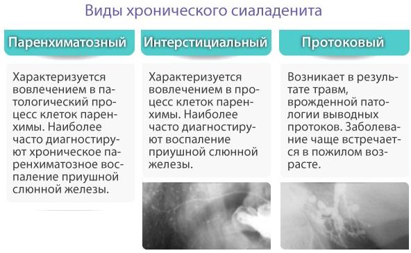 Воспалился язык: слюнная железа, уздечка, сосочки-пупырышки, по бокам. Фото, лечение