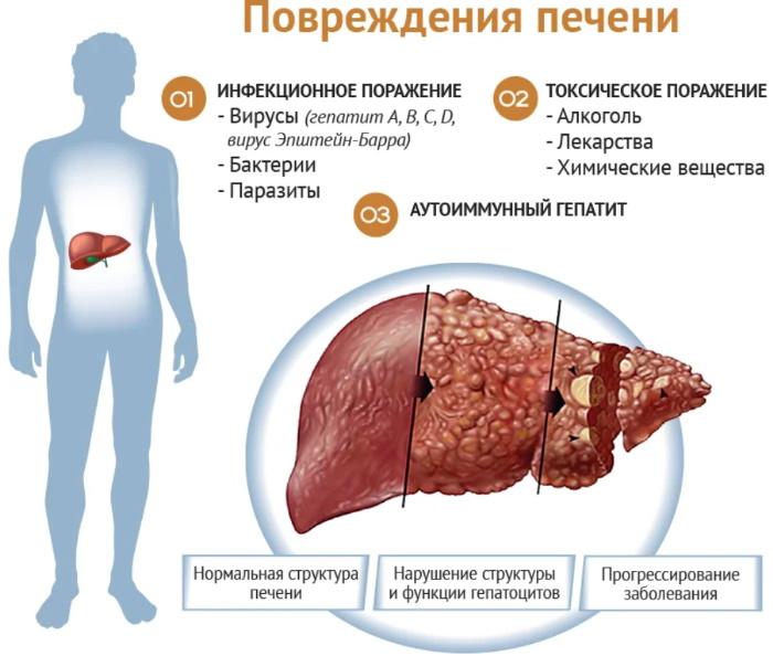Заболевания печени у женщин. Причины, симптомы и лечение