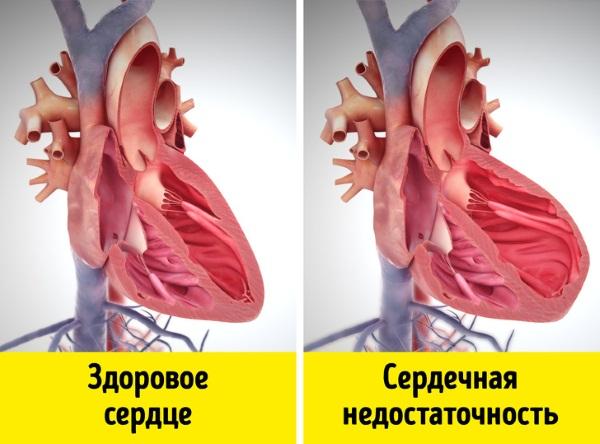 Железодефицитная анемия. Симптомы у женщин, причины, лечение при беременности, в пожилом возрасте