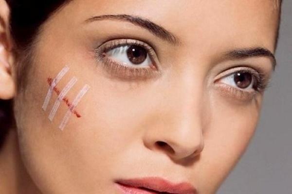 Адапален крем. Инструкция по применению от морщин, прыщей, сухой кожи, розацеа, купероза. Цена, отзывы