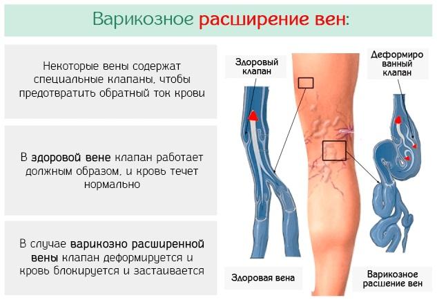 Алоэ в инъекциях для уколов. Инструкция по применению, показания в гинекологии, неврологии