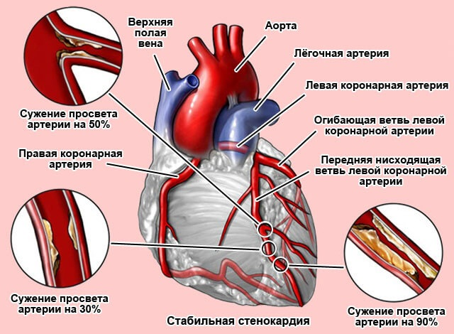 Ишемическая болезнь сердца. Симптомы и лечение, признаки, рекомендации