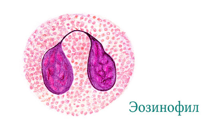 Эозинофилы. Норма у женщин по возрасту, таблица, расшифровка в анализе, лечение