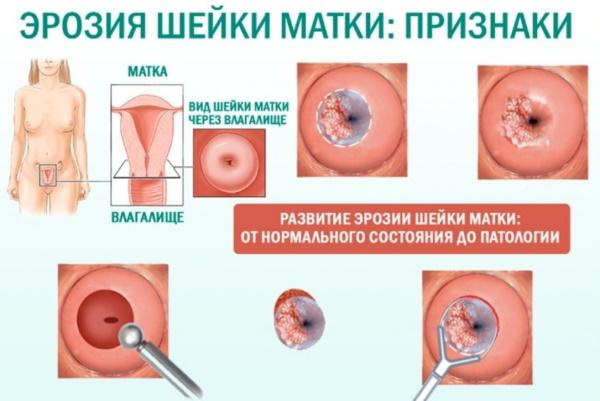 Эрозия шейки матки. Лечение облепиховым маслом, свечами, народными средствами, гомеопатией у нерожавших, при беременности, гв