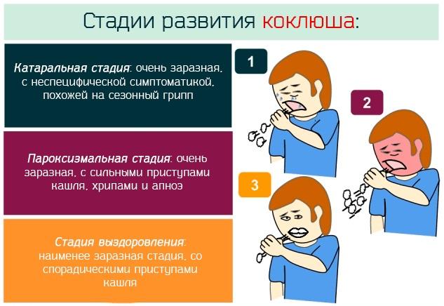 Коклюш. Симптомы и лечение у взрослого, заразность, инкубационный период