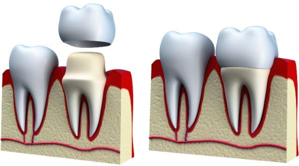 Коронки металлокерамика на зуб. Какие лучше, фото, как ставят, цены и отзывы