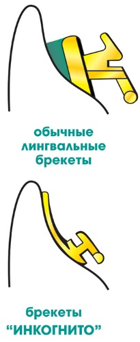 Установка брекетов. Этапы, виды, стоимость процедуры в стоматологии
