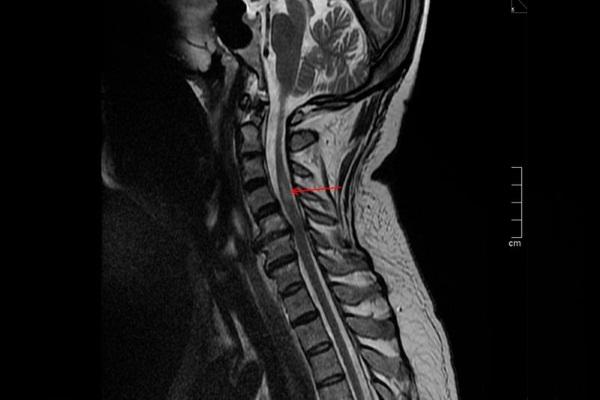 Последствия инсульта для женщин, мужчин с левой, правой стороны. Лечение, реабилитация