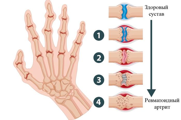 Ревматоидный артрит. Симптомы и лечение, препараты, народные средства