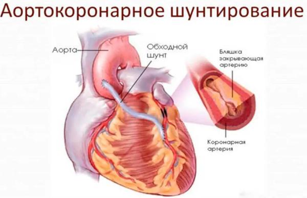 Шунтирование сердца. Что это такое, сколько живут, операция, противопоказания