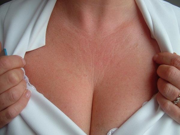 Сыпь на грудине у женщин. Причины, фото, чем лечить