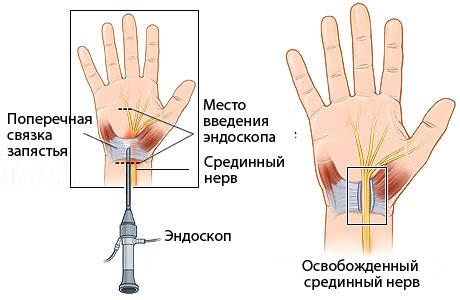 Туннельный синдром запястья кисти. Симптомы и лечение народными средствами, операция