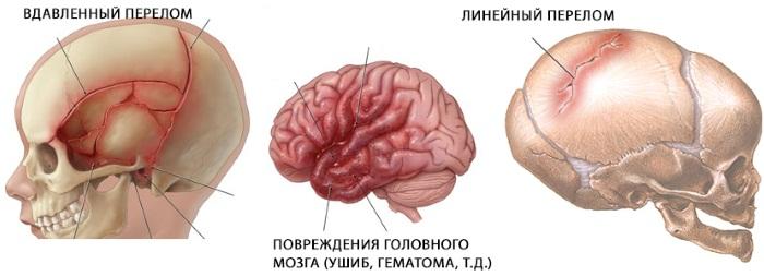 Что делать при ушибе головы, если ударился и болит, тошнит, кружится, шишка