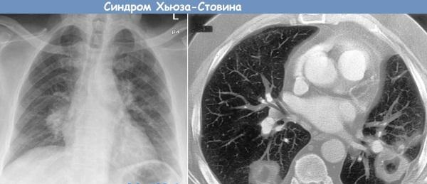 Вертебробазилярная недостаточность. Симптомы и лечение у детей и взрослых. Упражнения
