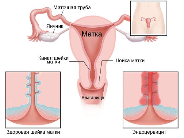 Воспаления по-женски придатков, почек, яичников, мочевого пузыря, лимфоузлов в паху, симптомы и лечение