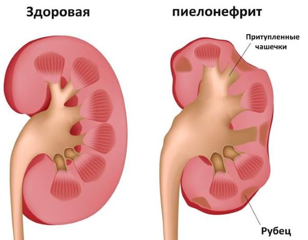 Enterococcus faecalis (энтерококк фекальный) в посеве на флору. Норма у женщин, мужчин. Лечение