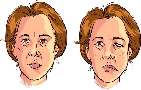 Невралгия лицевого нерва. Симптомы и лечение, народные средства, препараты