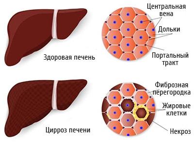 Щелочная фосфатаза. Норма у женщин в крови по возрасту, причины повышенной, пониженной, лечение
