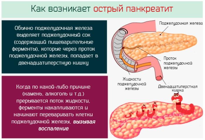 Панкреатит у женщин. Симптомы, лечение по возрасту, диета, препараты