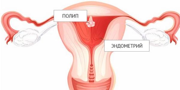 Удаление полипа матки лазером, гистероскопия эндометрия. Подготовка, восстановительный период