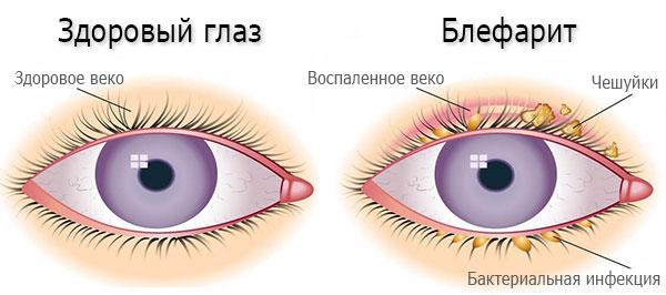 Слезотечение из глаз. Причины и лечение, капли для пожилых, детей