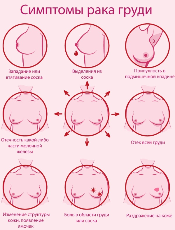 Болит грудь в середине цикла, второй половине, весь цикл. Почему набухла, что делать