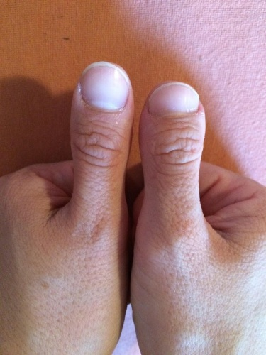 Брахидактилия большого пальца. Тип наследования, операция