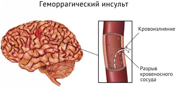 Опухоль гипофиза. Симптомы у женщин, мужчин, ребенка, причины, лечение