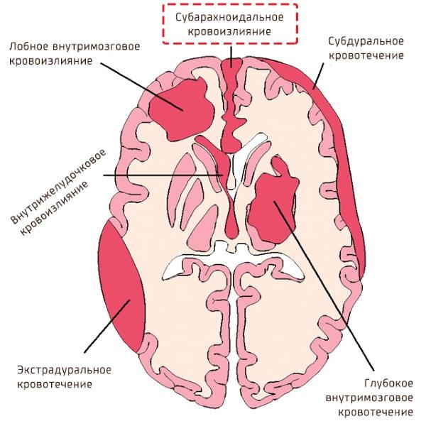 Геморрагический инсульт. Что это такое, симптомы, диагностика, лечение клинические рекомендации, прогноз
