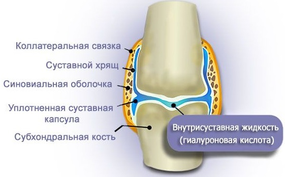 Гиалуром CS для суставов уколы. Инструкция по применению, цена, отзывы