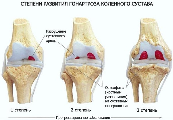 Гонартроз коленного сустава 3 степени. Лечение народными средствами, лазером, по Бубновскому, операция