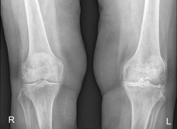 Остеоартроз коленного сустава. Лечение, что это такое, препараты, лечебная гимнастика, упражнения