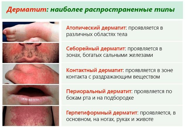 Шампуни при себорейном дерматите кожи у взрослых, ребёнка. Циновит, Лостерин, Себозол. Отзывы